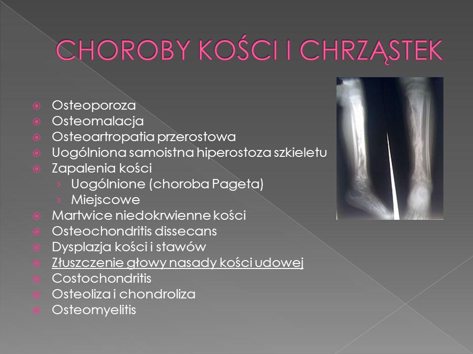 Osteoporoza Osteomalacja Osteoartropatia przerostowa Uogólniona samoistna hiperostoza szkieletu Zapalenia kości Uogólnione (choroba Pageta) Miejscowe