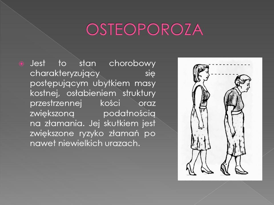 Jest to stan chorobowy charakteryzujący się postępującym ubytkiem masy kostnej, osłabieniem struktury przestrzennej kości oraz zwiększoną podatnością