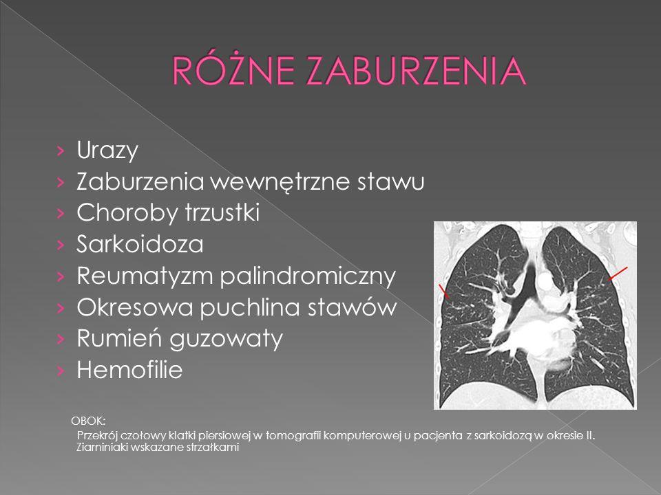 Urazy Zaburzenia wewnętrzne stawu Choroby trzustki Sarkoidoza Reumatyzm palindromiczny Okresowa puchlina stawów Rumień guzowaty Hemofilie OBOK: Przekr