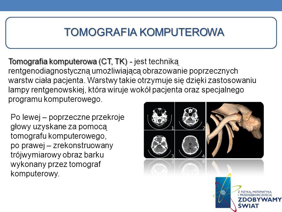 TOMOGRAFIA KOMPUTEROWA Tomografia komputerowa (CT, TK) - Tomografia komputerowa (CT, TK) - jest techniką rentgenodiagnostyczną umożliwiającą obrazowan