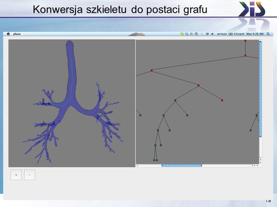 19 Konwersja szkieletu do postaci grafu