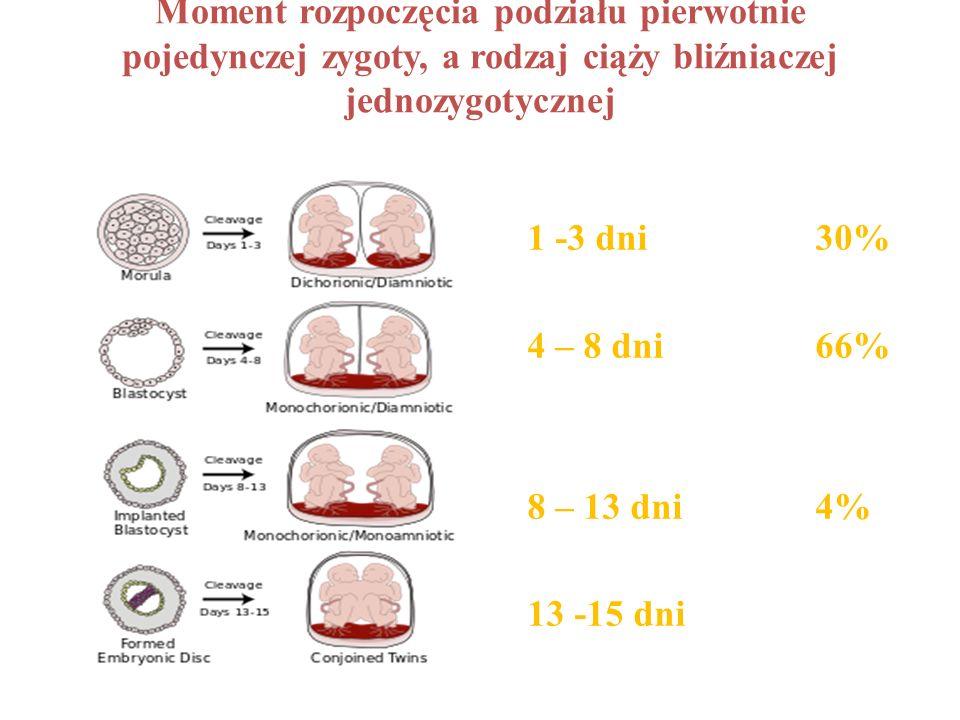 Moment rozpoczęcia podziału pierwotnie pojedynczej zygoty, a rodzaj ciąży bliźniaczej jednozygotycznej 1 -3 dni 30% 4 – 8 dni66% 8 – 13 dni4% 13 -15 d