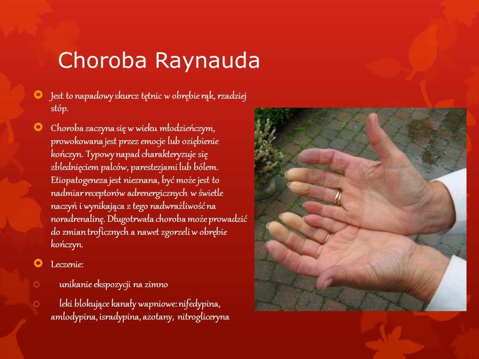 Choroba Raynauda Jest to napadowy skurcz tętnic w obrębie rąk, rzadziej stóp. Choroba zaczyna się w wieku młodzieńczym, prowokowana jest przez emocje