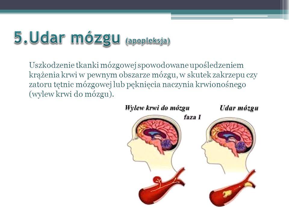 Przyczyną udaru są zaburzenia krążenia w mózgu.