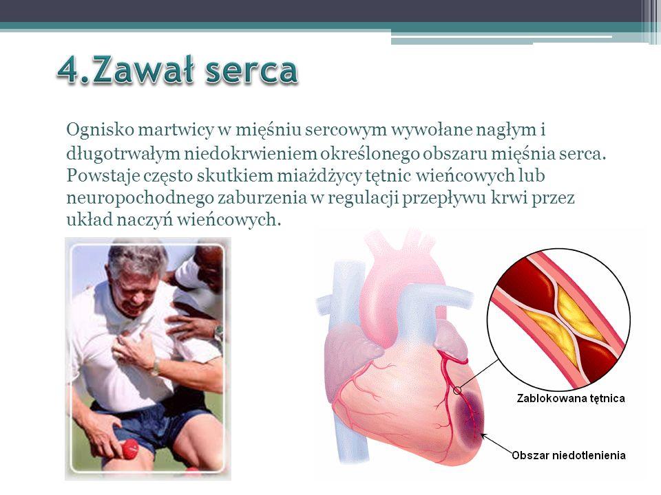 odczuwanie piekącego, gniotącego bólu w okolicy mostka, ból może promieniować w stronę łopatek, żuchwy lub podbrzusza, odczuwalne drętwienie rąk, duszności, stan podgorączkowy lepki pot, bladość skóry, wymioty i nudności, dreszcze, spadek ciśnienia tętniczego, bladość skóry