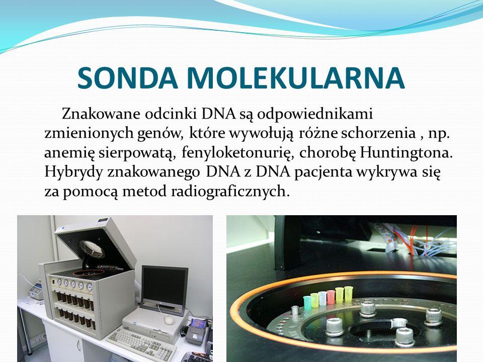 SONDA MOLEKULARNA Znakowane odcinki DNA są odpowiednikami zmienionych genów, które wywołują różne schorzenia, np. anemię sierpowatą, fenyloketonurię,