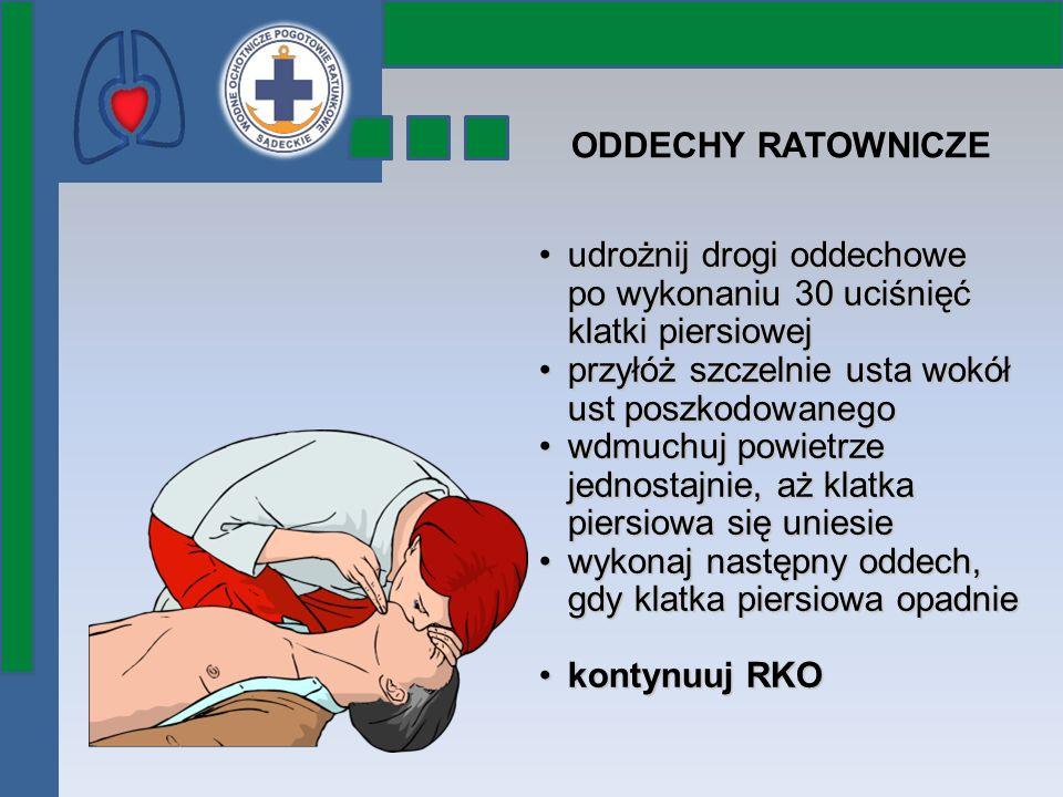 ODDECHY RATOWNICZE udrożnij drogi oddechowe po wykonaniu 30 uciśnięć klatki piersiowejudrożnij drogi oddechowe po wykonaniu 30 uciśnięć klatki piersio