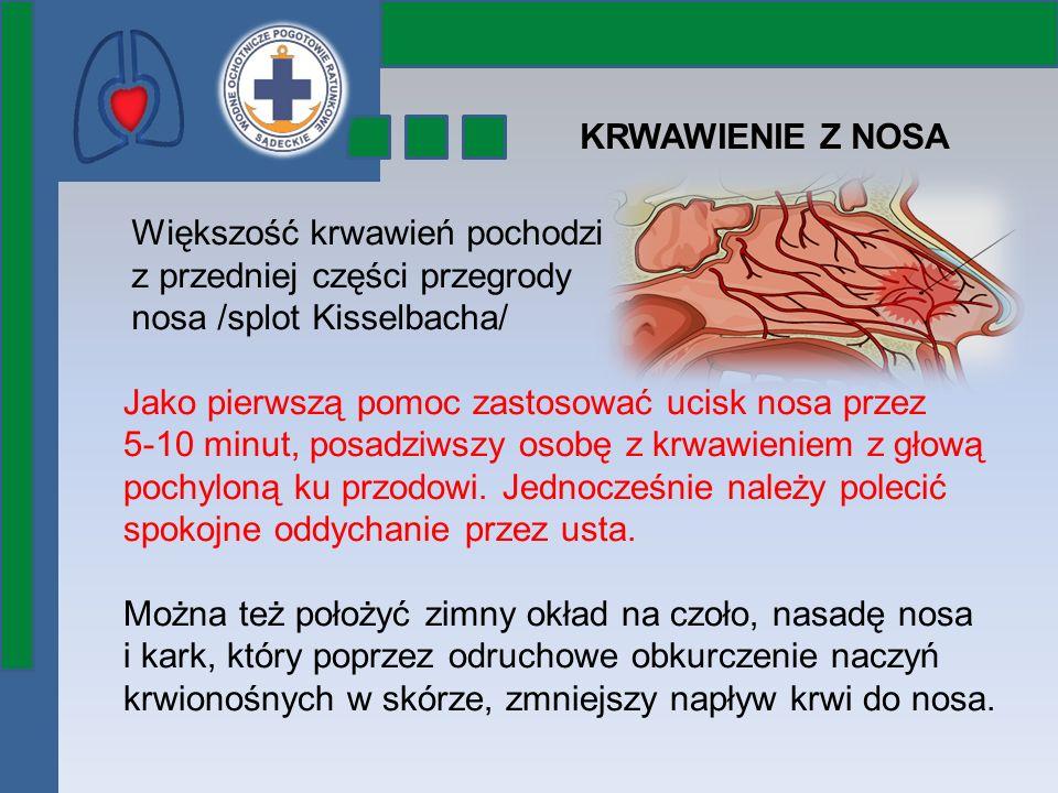 KRWAWIENIE Z NOSA Większość krwawień pochodzi z przedniej części przegrody nosa /splot Kisselbacha/ Jako pierwszą pomoc zastosować ucisk nosa przez 5-