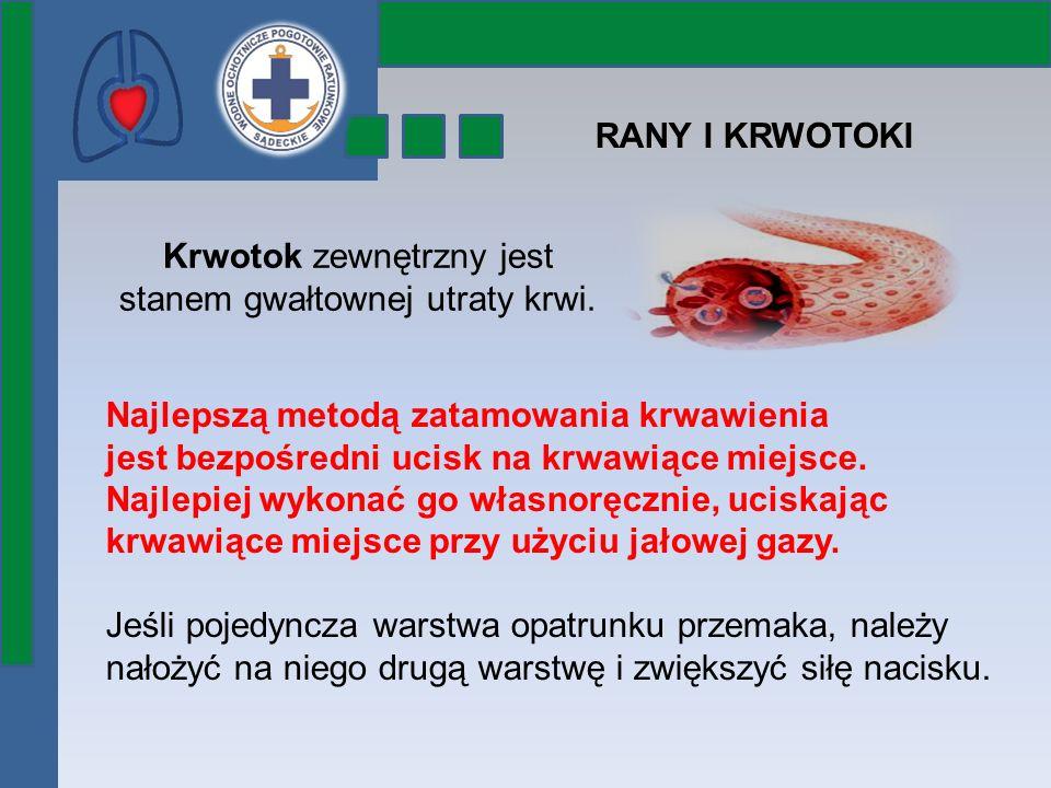 Krwotok zewnętrzny jest stanem gwałtownej utraty krwi. RANY I KRWOTOKI Najlepszą metodą zatamowania krwawienia jest bezpośredni ucisk na krwawiące mie
