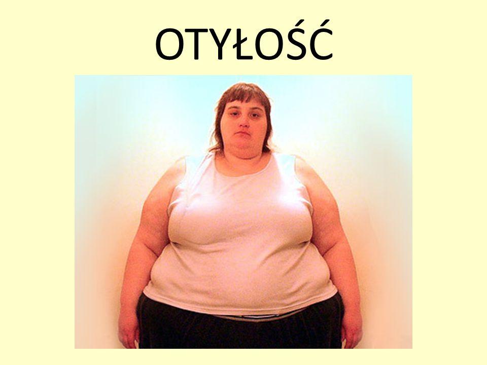 Otyłość jest przewlekłą chorobą spowodowaną nadmierną podażą energii zawartej w pokarmach w stosunku do zapotrzebowania organizmu, skutkiem czego jest magazynowanie nadmiaru w postaci tkanki tłuszczowej.