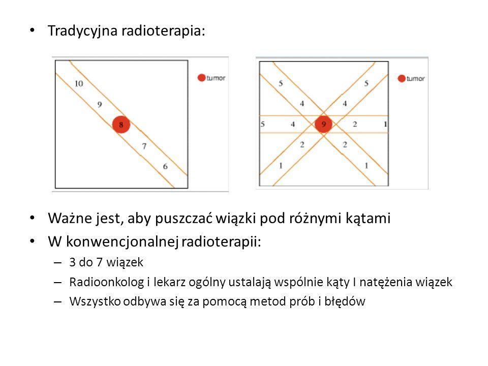 Tradycyjna radioterapia: Ważne jest, aby puszczać wiązki pod różnymi kątami W konwencjonalnej radioterapii: – 3 do 7 wiązek – Radioonkolog i lekarz ogólny ustalają wspólnie kąty I natężenia wiązek – Wszystko odbywa się za pomocą metod prób i błędów