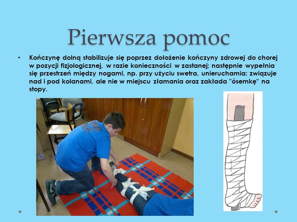 Pierwsza pomoc Kończynę dolną stabilizuje się poprzez dołożenie kończyny zdrowej do chorej w pozycji fizjologicznej, w razie konieczności w zastanej;