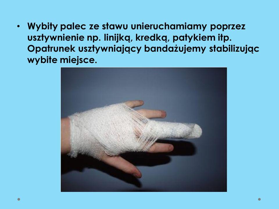 Wybity palec ze stawu unieruchamiamy poprzez usztywnienie np. linijką, kredką, patykiem itp. Opatrunek usztywniający bandażujemy stabilizując wybite m