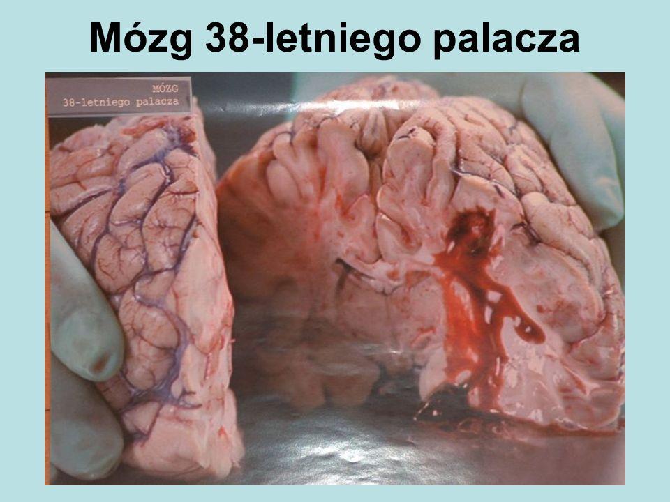 Mózg 38-letniego palacza