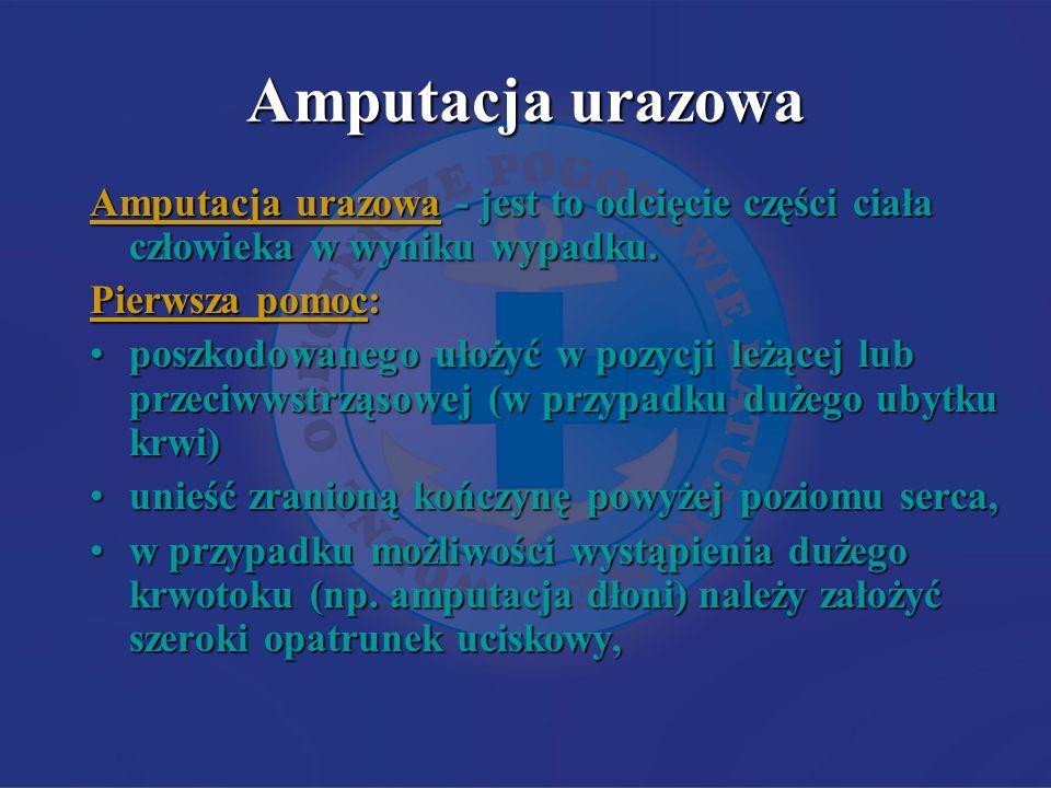 Amputacja urazowa Amputacja urazowa - jest to odcięcie części ciała człowieka w wyniku wypadku. Pierwsza pomoc: poszkodowanego ułożyć w pozycji leżące