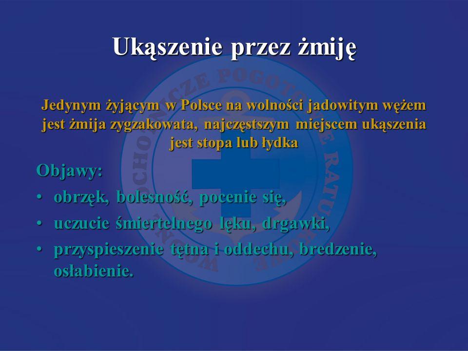 Ukąszenie przez żmiję Jedynym żyjącym w Polsce na wolności jadowitym wężem jest żmija zygzakowata, najczęstszym miejscem ukąszenia jest stopa lub łydk