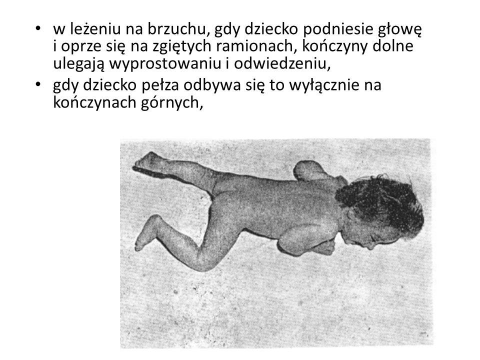 w leżeniu na brzuchu, gdy dziecko podniesie głowę i oprze się na zgiętych ramionach, kończyny dolne ulegają wyprostowaniu i odwiedzeniu, gdy dziecko p