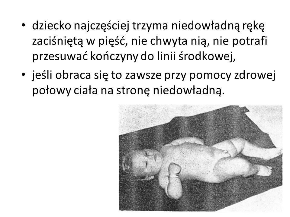 dziecko najczęściej trzyma niedowładną rękę zaciśniętą w pięść, nie chwyta nią, nie potrafi przesuwać kończyny do linii środkowej, jeśli obraca się to