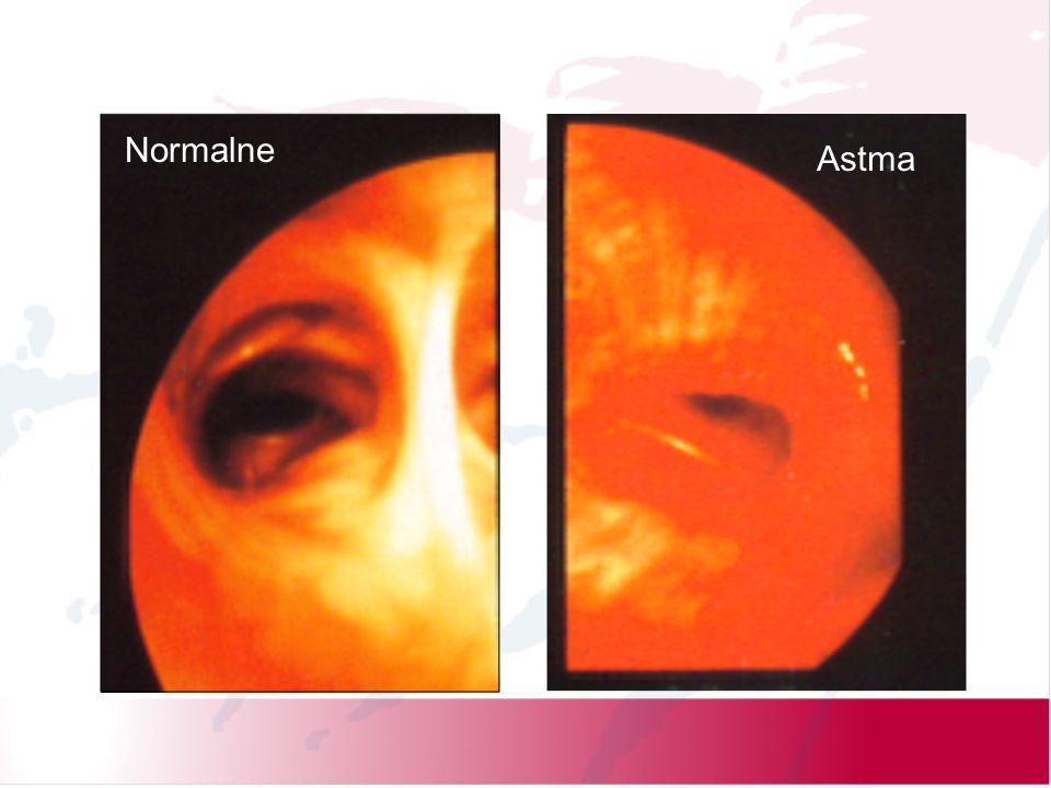 Astma Normalne