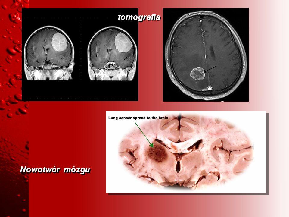 Nowotwór mózgu tomografia