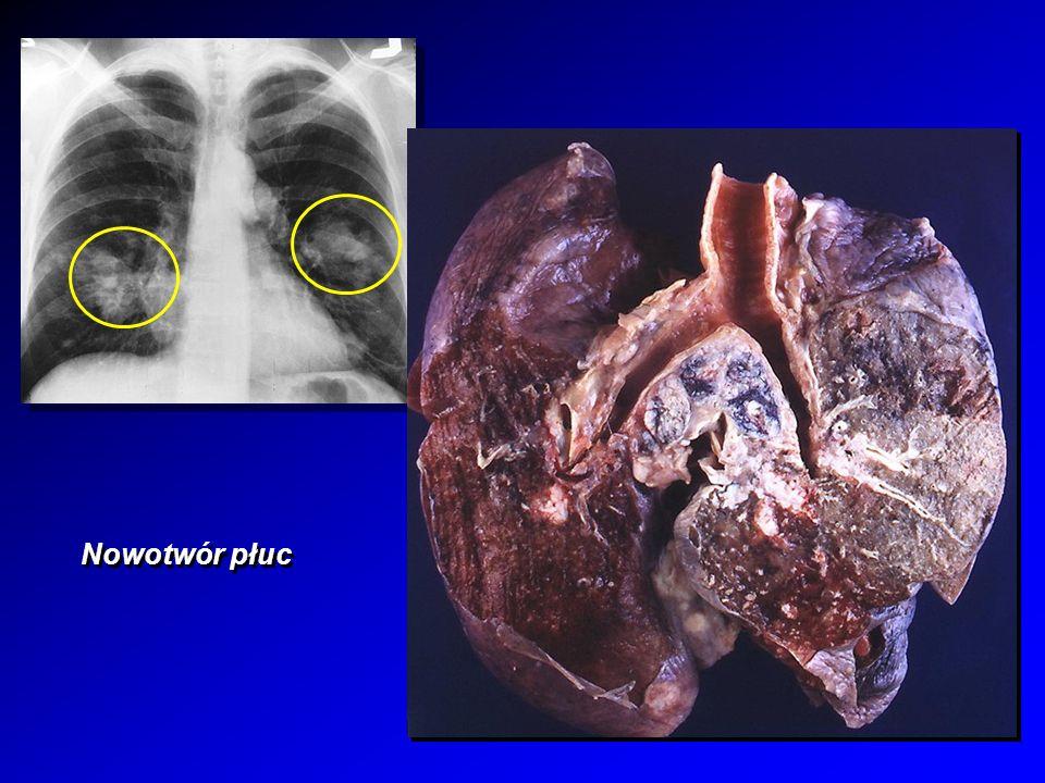 Nowotwór piersi mammografia