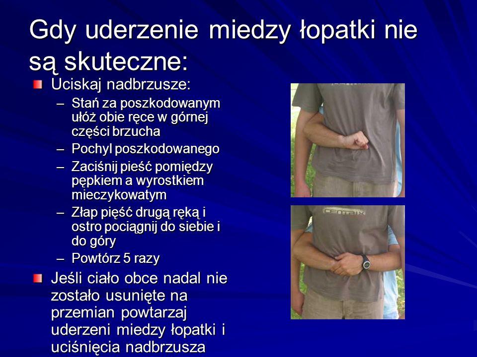 Gdy uderzenie miedzy łopatki nie są skuteczne: Uciskaj nadbrzusze: –Stań za poszkodowanym ułóż obie ręce w górnej części brzucha –Pochyl poszkodowaneg