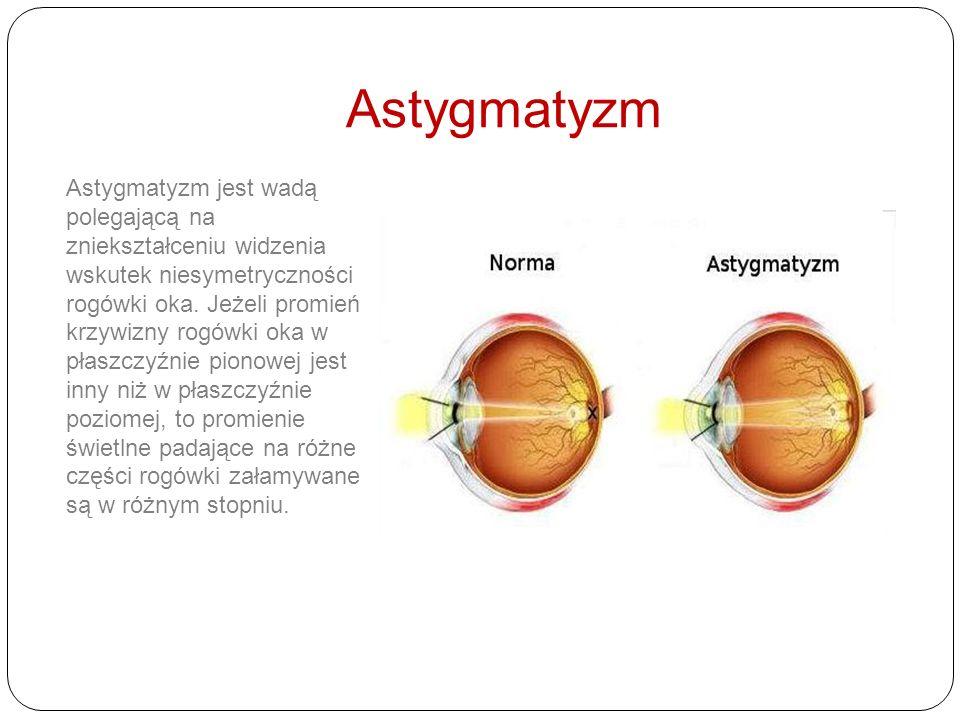 Wady wzroku Gdy promienie soczewki skupiają się zbyt blisko mamy do czynienia z krótkowzrocznością. Oko krótkowidza z taką wadą koryguje się przy pomo