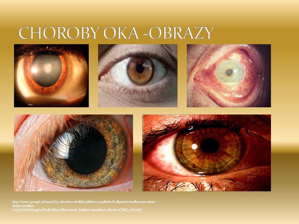 http://www.google.pl/search?q=choroby+oka&hl=pl&biw=1259&bih=871&prmd=ivns&source=lnms &tbm=isch&ei=- LHgTdviMdHysgbuvfTuBQ&sa=X&oi=mode_link&ct=mode&