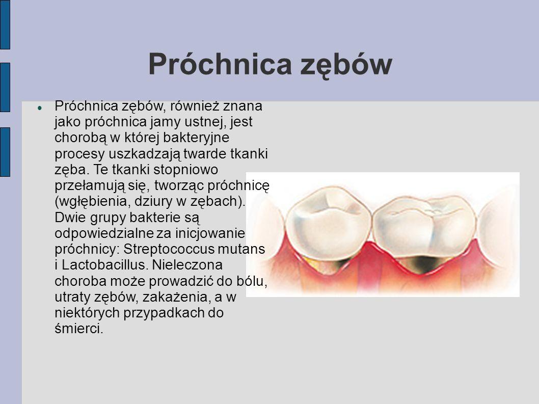 Próchnica zębów Próchnica zębów, również znana jako próchnica jamy ustnej, jest chorobą w której bakteryjne procesy uszkadzają twarde tkanki zęba. Te