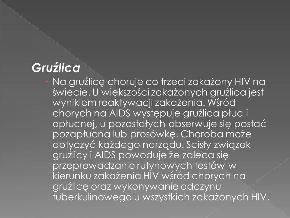 Gruźlica Na gruźlicę choruje co trzeci zakażony HIV na świecie.
