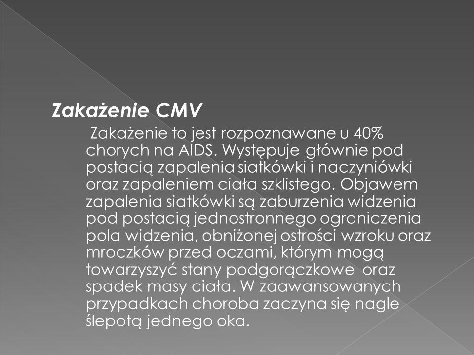 Zakażenie CMV Zakażenie to jest rozpoznawane u 40% chorych na AIDS.