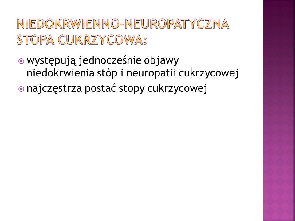 występują jednocześnie objawy niedokrwienia stóp i neuropatii cukrzycowej najczęstrza postać stopy cukrzycowej
