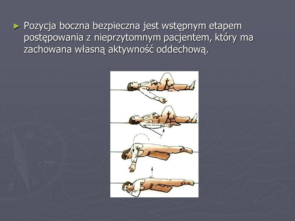 Pozycja boczna bezpieczna jest wstępnym etapem postępowania z nieprzytomnym pacjentem, który ma zachowana własną aktywność oddechową. Pozycja boczna b