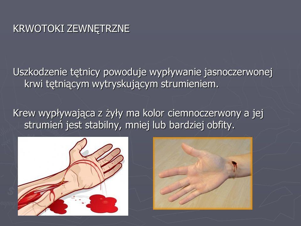 KRWOTOKI ZEWNĘTRZNE Uszkodzenie tętnicy powoduje wypływanie jasnoczerwonej krwi tętniącym wytryskującym strumieniem. Krew wypływająca z żyły ma kolor