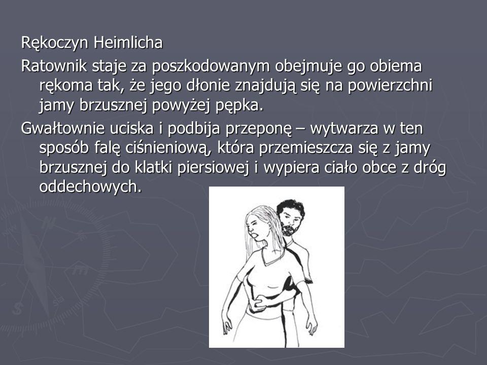 Rękoczyn Heimlicha Ratownik staje za poszkodowanym obejmuje go obiema rękoma tak, że jego dłonie znajdują się na powierzchni jamy brzusznej powyżej pę
