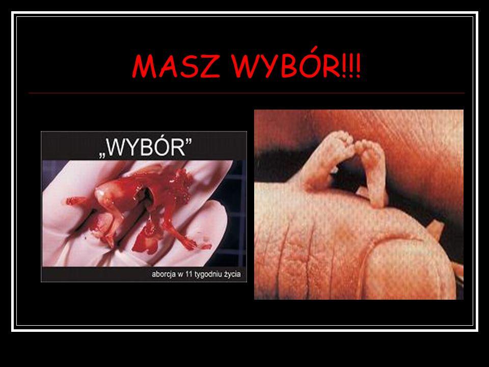 MASZ WYBÓR!!!
