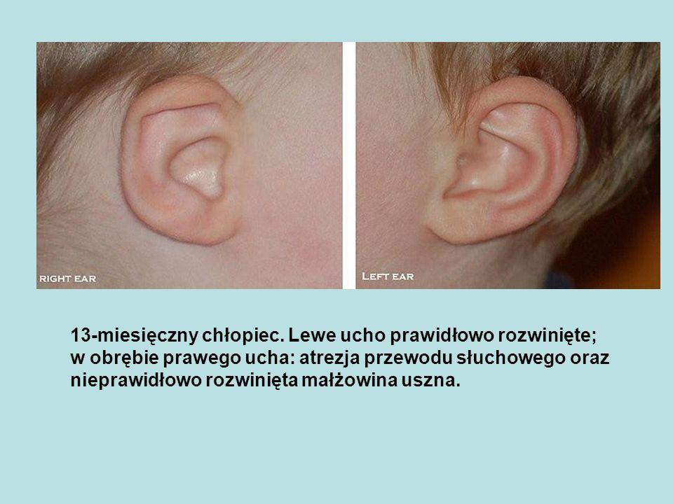 13-miesięczny chłopiec. Lewe ucho prawidłowo rozwinięte; w obrębie prawego ucha: atrezja przewodu słuchowego oraz nieprawidłowo rozwinięta małżowina u