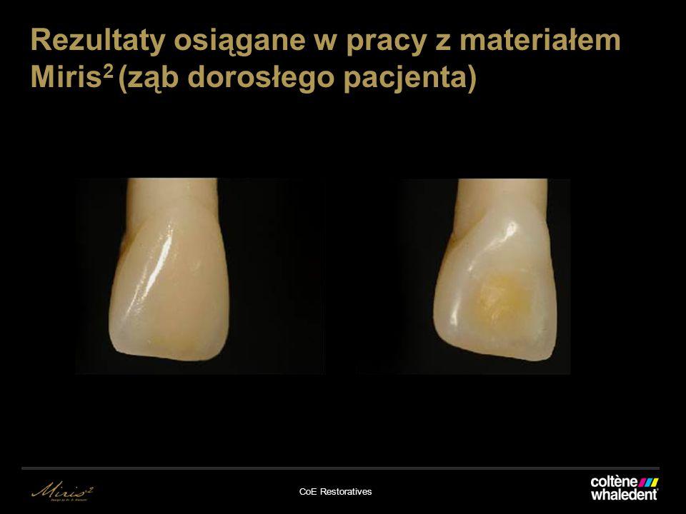 CoE Restoratives Rezultaty osiągane w pracy z materiałem Miris 2 (ząb dorosłego pacjenta)