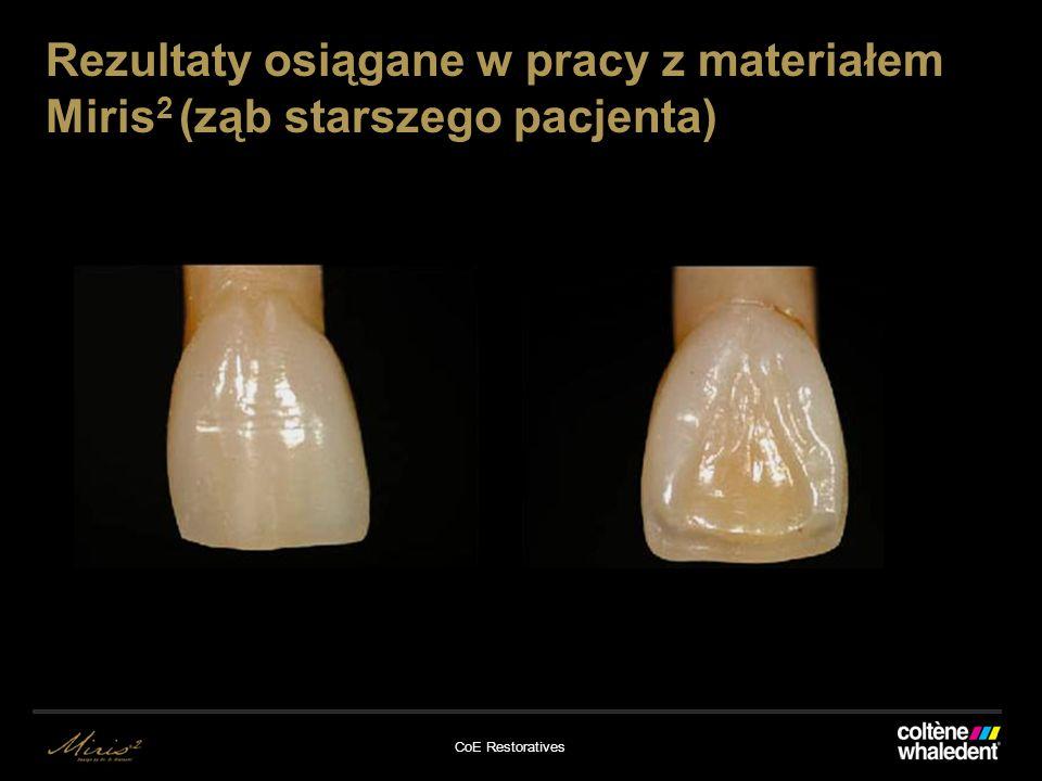 CoE Restoratives Rezultaty osiągane w pracy z materiałem Miris 2 (ząb starszego pacjenta)