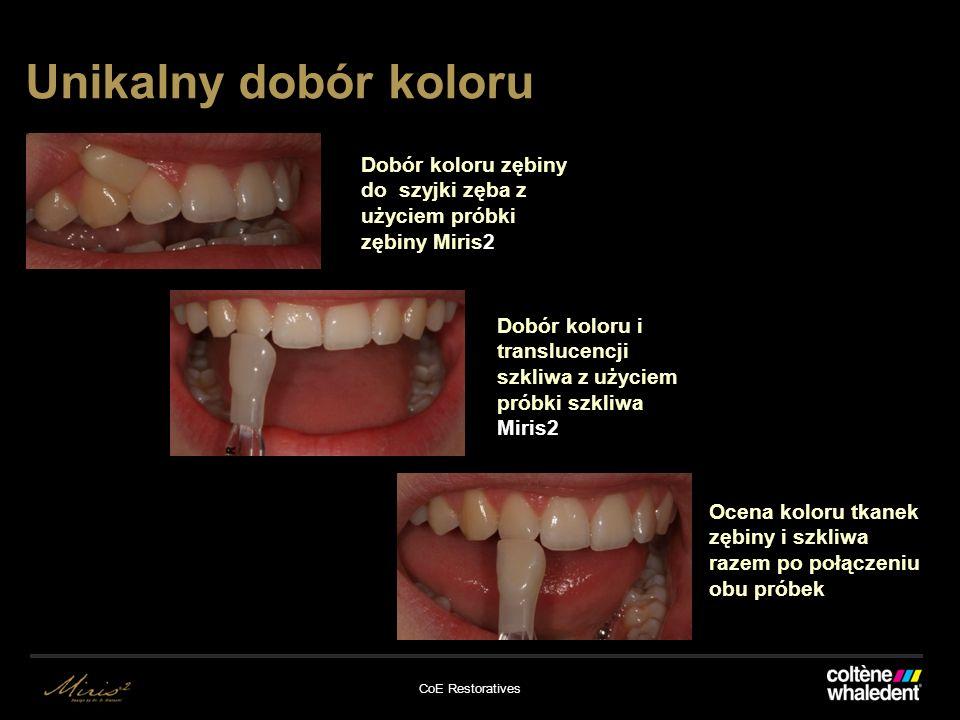 CoE Restoratives Unikalny dobór koloru Dobór koloru zębiny do szyjki zęba z użyciem próbki zębiny Miris2 Dobór koloru i translucencji szkliwa z użyciem próbki szkliwa Miris2 Ocena koloru tkanek zębiny i szkliwa razem po połączeniu obu próbek