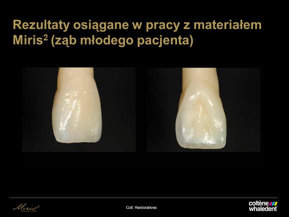CoE Restoratives Rezultaty osiągane w pracy z materiałem Miris 2 (ząb młodego pacjenta)