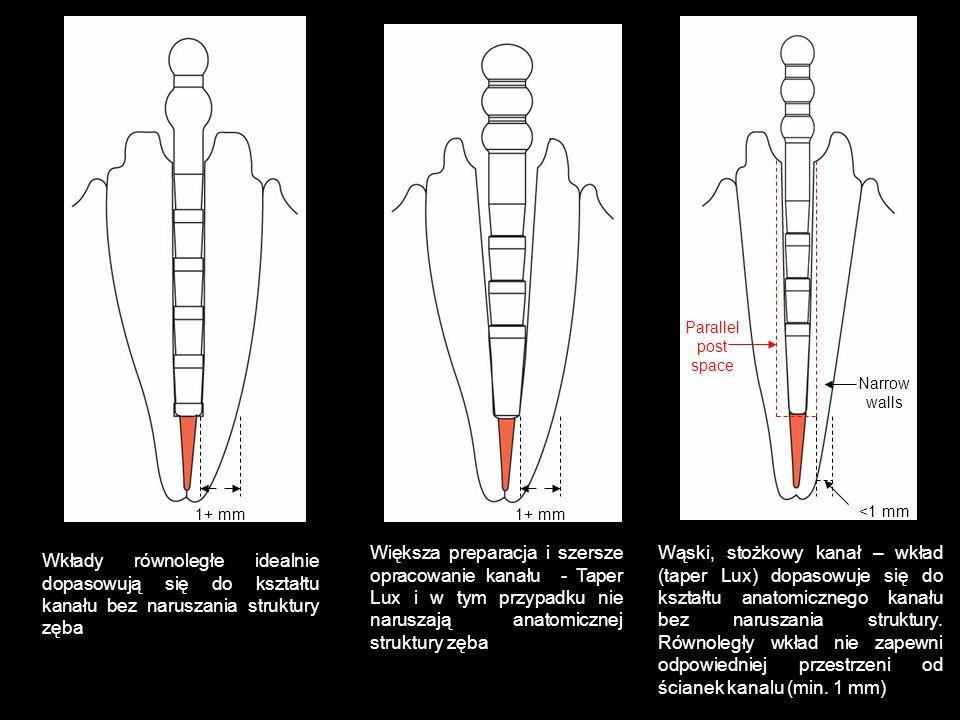 Wkłady równoległe idealnie dopasowują się do kształtu kanału bez naruszania struktury zęba Większa preparacja i szersze opracowanie kanału - Taper Lux
