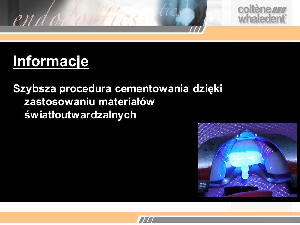 Informacje Szybsza procedura cementowania dzięki zastosowaniu materiałów światłoutwardzalnych