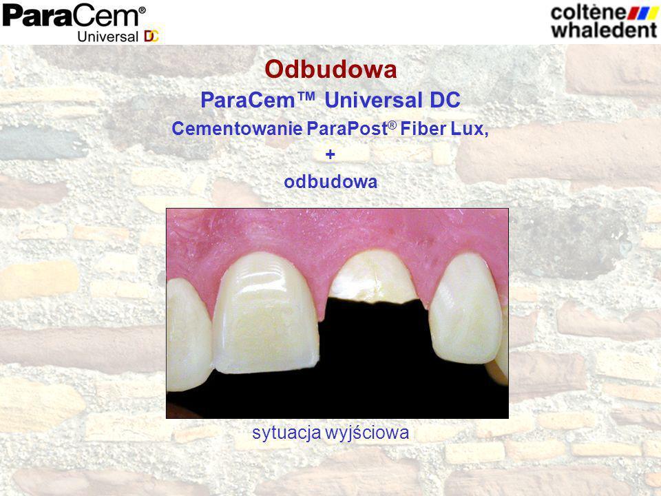 ParaCem Universal DC Cementowanie ParaPost ® Fiber Lux, + odbudowa sytuacja wyjściowa Odbudowa