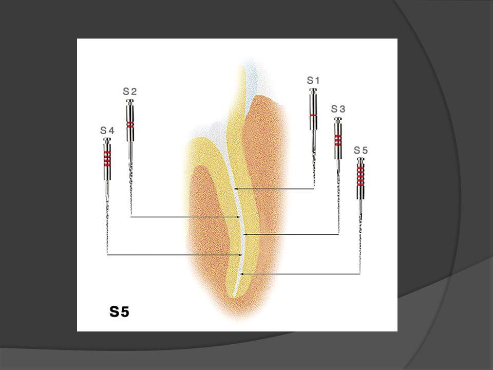 W porównaniu z innymi systemami S5 jest : Łatwy w obsłudze, dla każdego lekarza Mało narzędzi w systemie Logiczna sekwencja używania narzędzi Bardzo atrakcyjny cenowo!!!