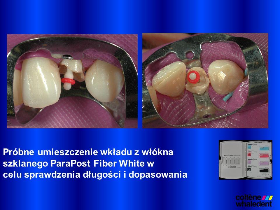 Próbne umieszczenie wkładu z włókna szklanego ParaPost Fiber White w celu sprawdzenia długości i dopasowania