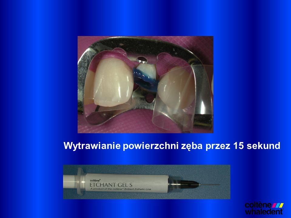 Wytrawianie powierzchni zęba przez 15 sekund