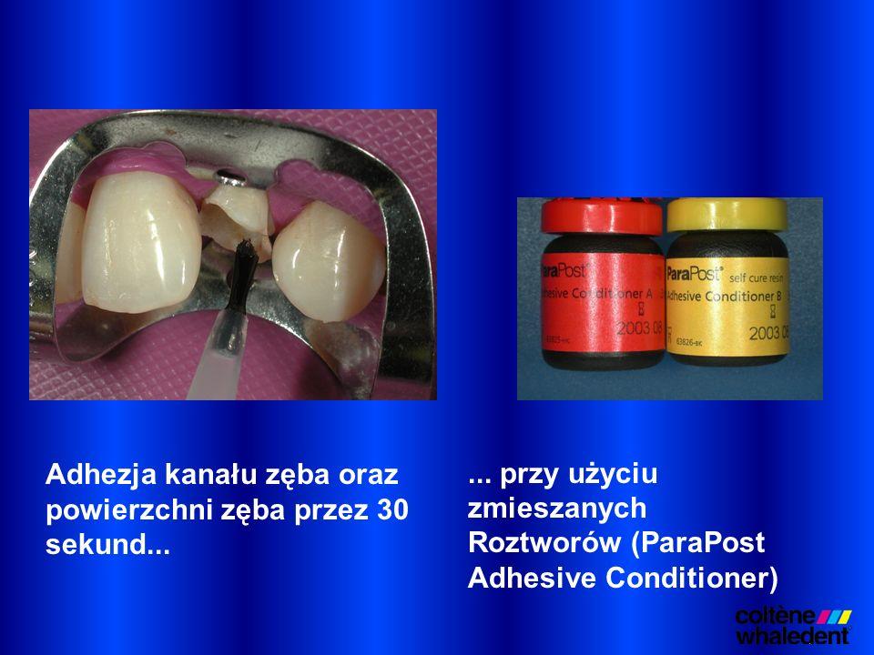 ... przy użyciu zmieszanych Roztworów (ParaPost Adhesive Conditioner) Adhezja kanału zęba oraz powierzchni zęba przez 30 sekund...