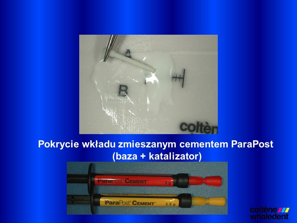 Pokrycie wkładu zmieszanym cementem ParaPost (baza + katalizator)