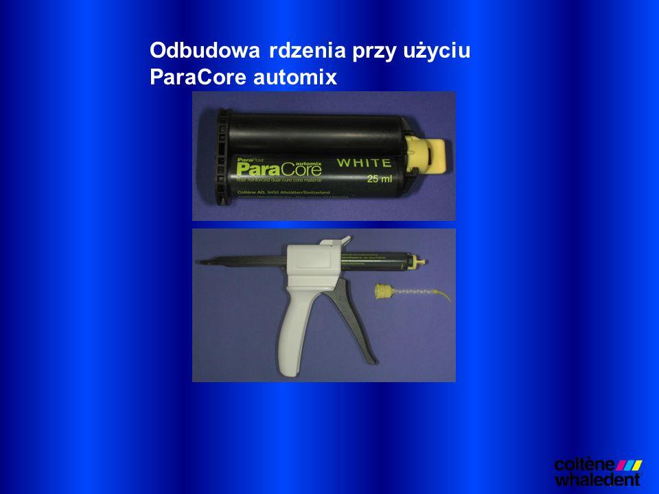 Odbudowa rdzenia przy użyciu ParaCore automix